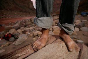 Feet In Cataract